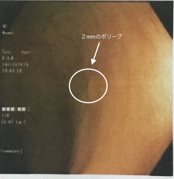 大腸内視鏡で発見されたポリープ