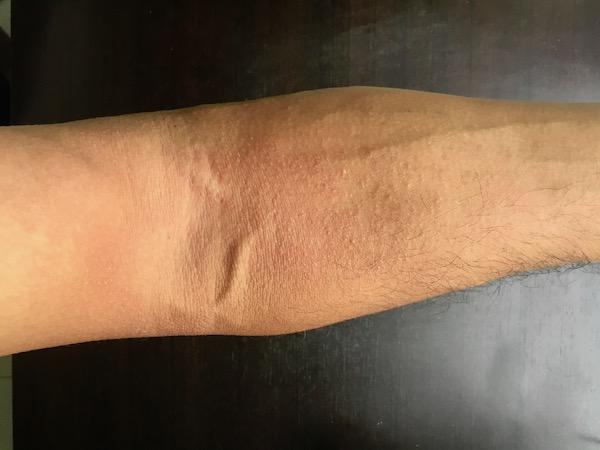 タイの市場でマンゴーを触っていたらよ翌日にマンゴー皮膚炎になった